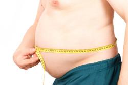 Ожирение - причина дивертикулеза