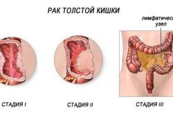 Классификация рака толстой кишки в зависимости от стадии опухолевого процесса