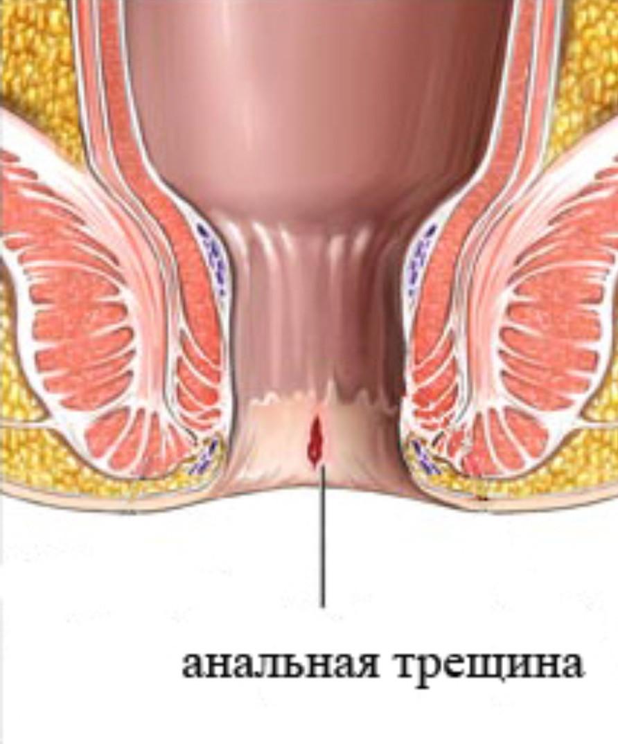 колит в заднем проходе у женщин чем лечить функциональное