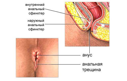 Свечи от геморроя трещин и кровотечение