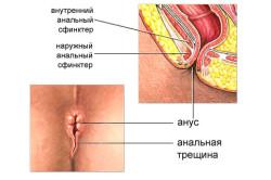 Анальные трещины - причина кровотечений