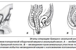 Схема резекции прямой кишки