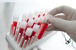 Анализ крови при спайке после аппендицита