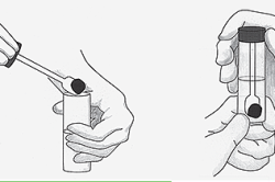Сбор анализа кала для диагностики полипов толстой кишки