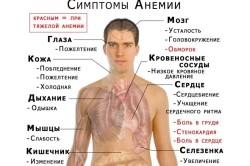 Анемия - причина полипов в толстой кишке