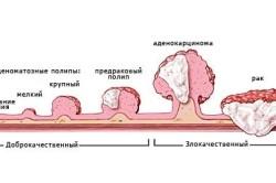 Доброкачественные и злокачественные опухоли рака прямой кишки