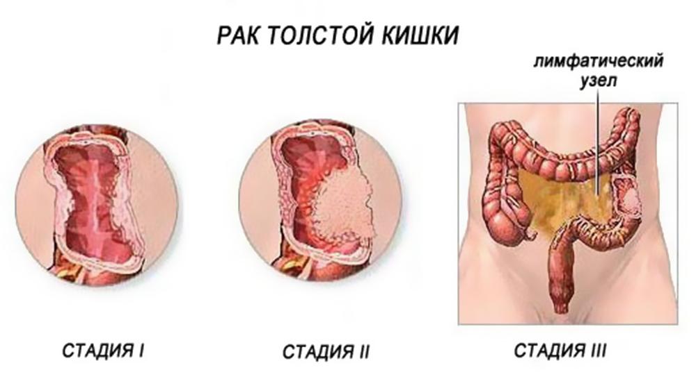 Принято выделять четыре стадии рака прямой кишки.